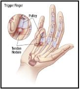 trigger-finger