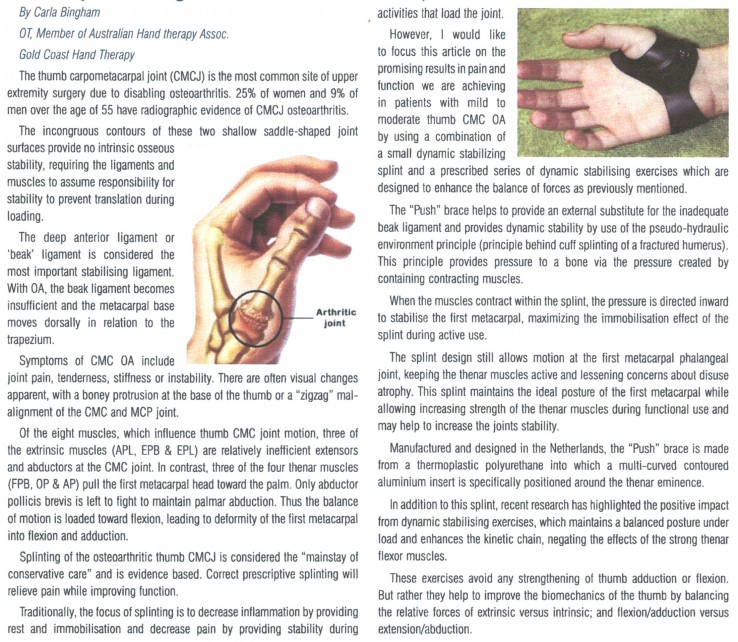 A-new-splint-design-for-the-thumb-CMS-joint