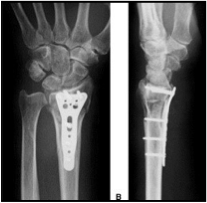 Open Reduction and Internal Fixation